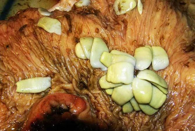 Anoplocephala perfoliata tapeworms.